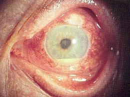 Uveite: infiammazione dell'uvea