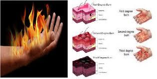 Cara menghilangkan bekas luka bakar yang sudah lama