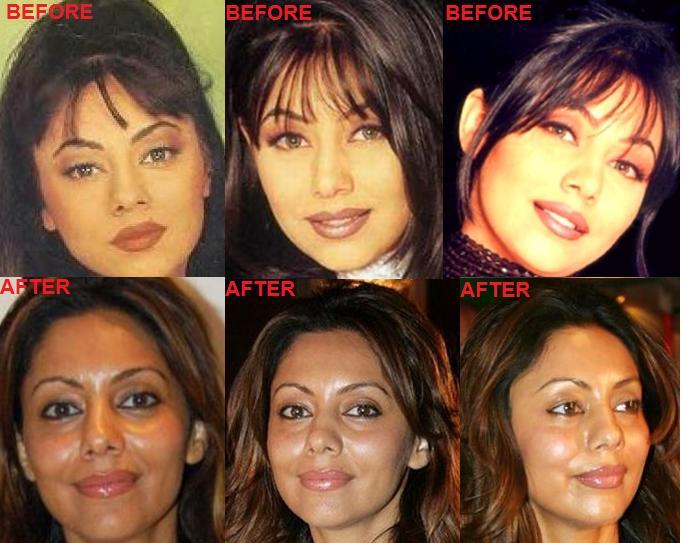 Karishma Kapoor Plastic Surgery