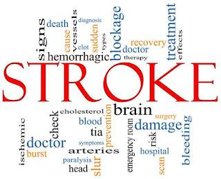 Penyakit Stroke Dan Obatnya, obat alami untuk mencegah stroke, pengobatan stroke alternatif, berapa lama penyakit stroke ringan sembuh, mengobati stroke dengan bekam, pengobatan stroke di cisaat, obat tradisional stroke iskemik
