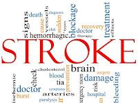Obat Kena Stroke
