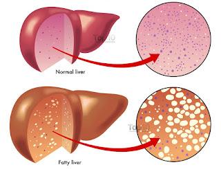 Obat Herbal Fatty Liver, Cara Menyembuhkan Penyakit Fatty Liver Secara Efektif Dan Cepat