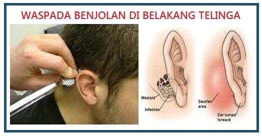 cara menghilangkan benjolan di telinga