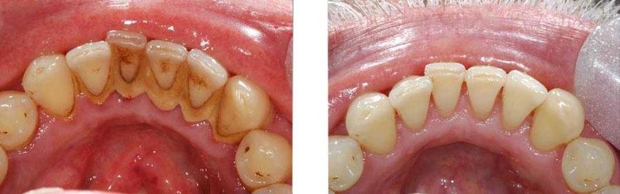 Zubne navlake za krive zube