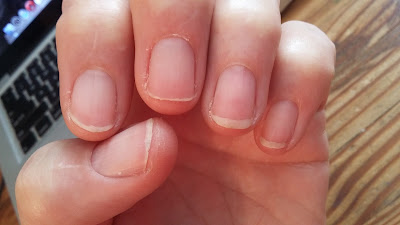 The Biotin seems to be working.  My nails are growning.