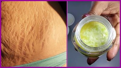 Very Effective Homemade Sugar-Salt Exfoliation Peeling Against Stretch Marks And Cellulite