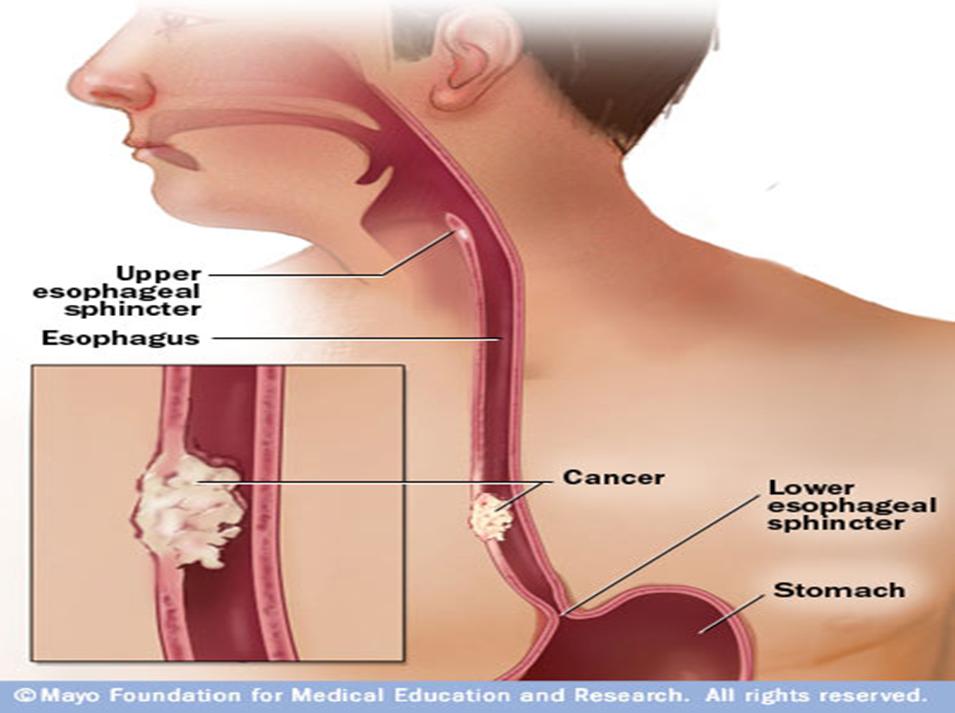 Obat Kanker Esofagus Herbal
