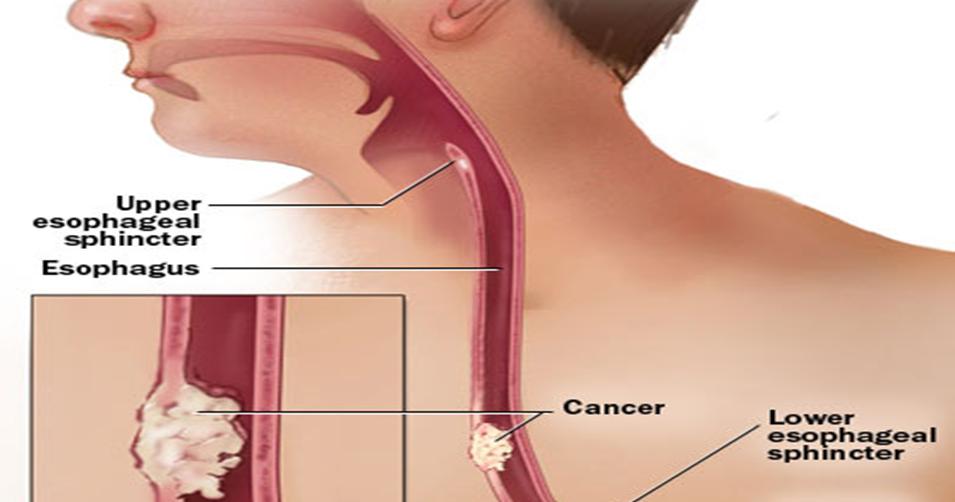 Obat Kanker Esofagus / Kerongkongan Herbal Mengobati ...