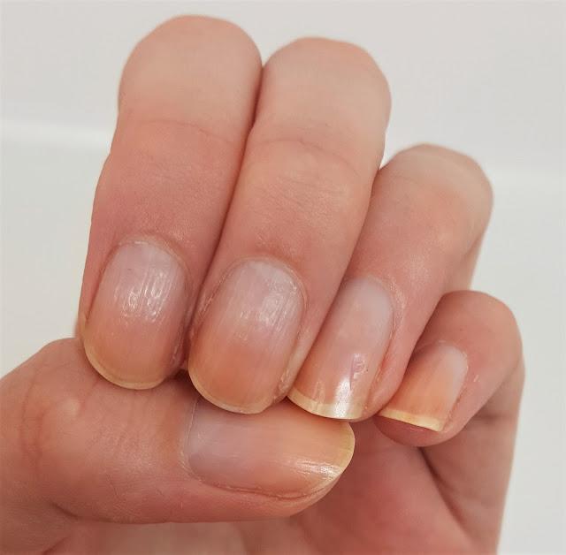 Linke Hand nach 12 Tagen