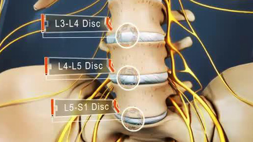 Điều trị thoát vị đĩa đệm trung tâm như thế nào ?