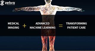 Zebra Medical Vision Develop Algorithms To Revolutionize Medical Imaging Diagnosis