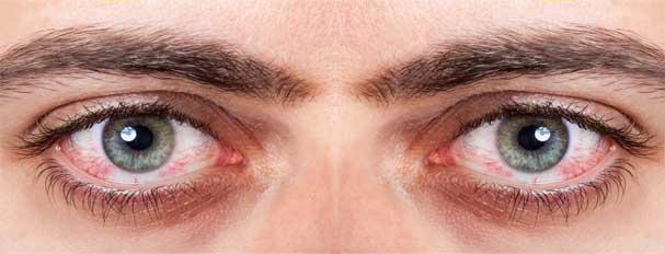 Cara mengatasi mata kering