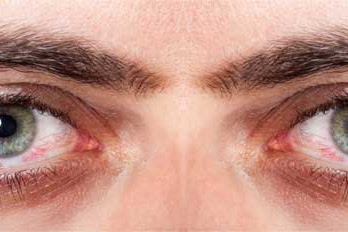 17 Cara mengatasi mata kering secara alami dan cepat