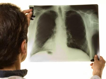 Técnico em Raio X - Saiba onde encontrar Curso de Radiologia em Vitória
