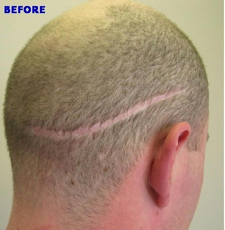 neograft curly hair man made head of hair hair loss transplant fue hair surgery