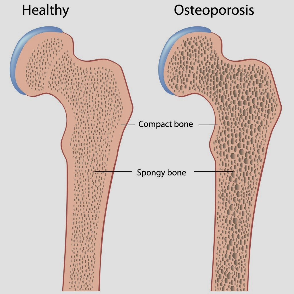 Osteoporosis Causes Symptoms Diagnosis