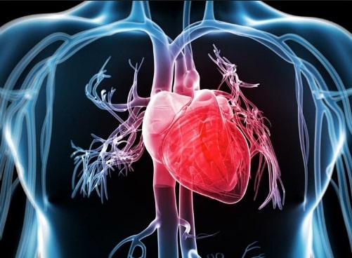 Informasi serangan jantung