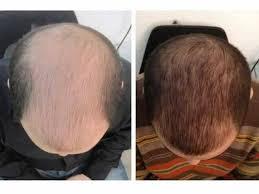 طرق علاج الشعر الخفيف وإيقاف تساقط الشعر وإعادة إنباته