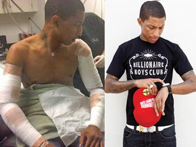 Realistic Tattoos: Pharrell Tattoo Removal