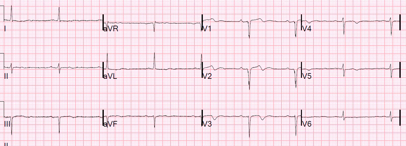 Dr  Smith's ECG Blog: A Very Elderly Male with a Fall and no