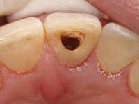 Penyebab Sakit Gigi Berlubang Dan Cara Mengatasinya