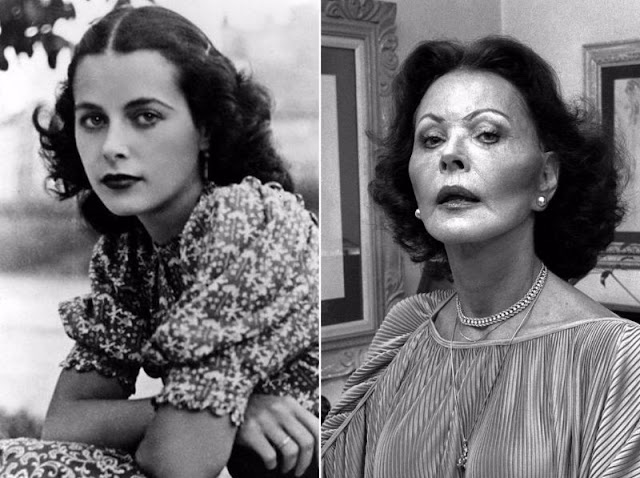 11 Classic Hollywood Stars Who Had Plastic Surgery ...