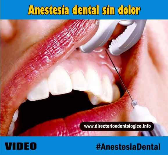 Anestesia Dental Sin Dolor