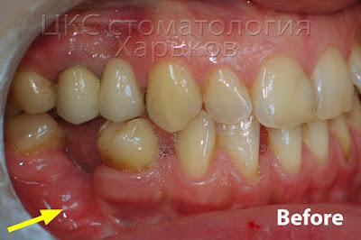 Смещение зубов и атрофия альвеолярного отростка