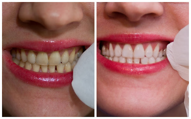 efekt przed i po używaniu pasków wybielajacych 3d white crest