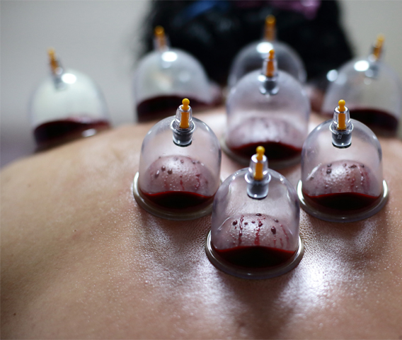 Cupping Therapy Side Effects: Cupping For Pain, Health & Performance
