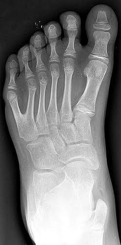 Radiografía de un pie izquierdo con polidactilia. La polidactilia (número anormal de dedos en las extremidades) parece haber sido un patrón habitual entre las razas de gigantes.