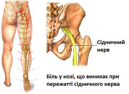 Болит правая сторона спины отдает в ногу