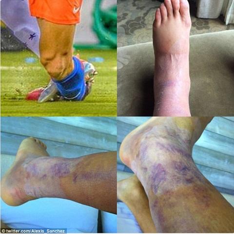 Đôi chân đầy vết bầm tím của Sanchez