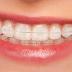[Hỏi Đáp] Niềng răng sứ thẩm mỹ giá bao nhiêu?
