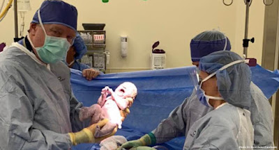 These babies were saved by abortion pill reversal - So were hundreds of others