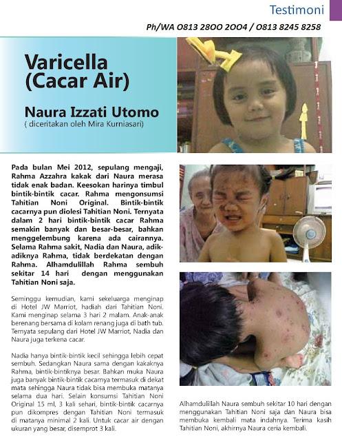 Agen Tahitian Noni Bekasi Ph/WA O813-8245-8258|Morinda Indonesia