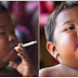 DO YOU REMEMBER THE BOY WHO SMOKES 40 CIGARETTES A DAY? SEE WHAT HE LOOKS LIKE 8 YEARS LATER!