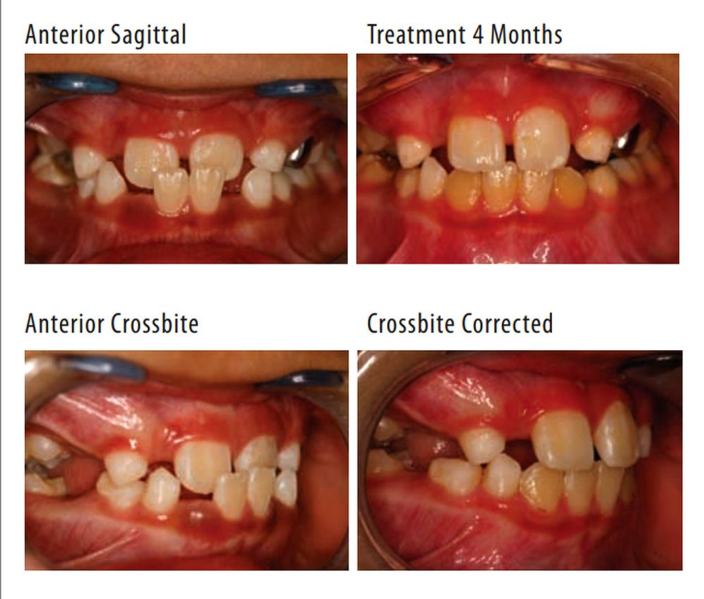 Interceptive Orthodontic