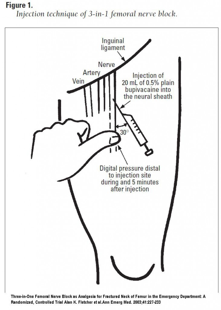 em didactic: femoral nerve block and three-in-one block, Muscles