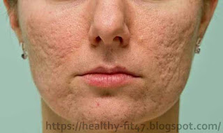 How to shrink facial pores naturally and permanently