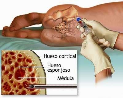 Trasplante de células madre de la médula ósea y de sangre del cordón ...
