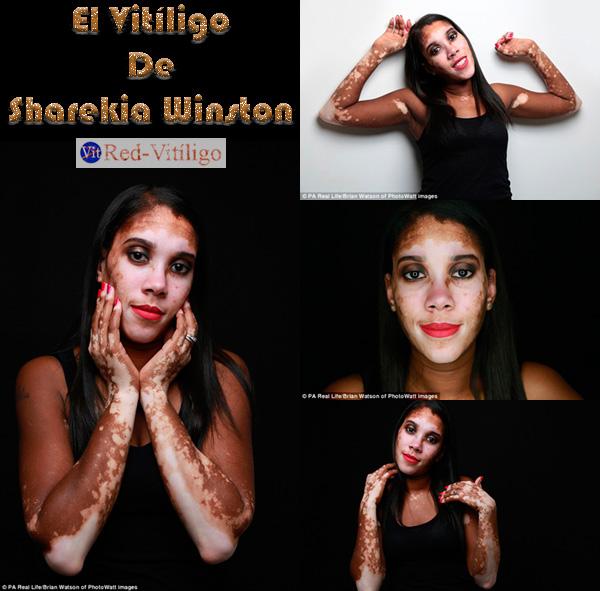 Personas con Vitiligo │ Sharekia Winston.