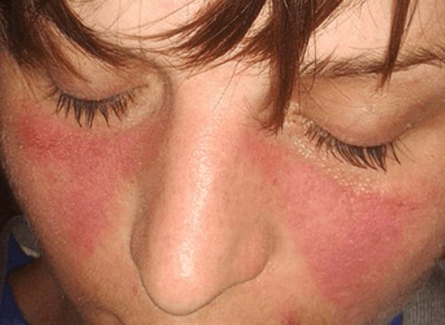 eritema malar, Lupus Eritematoso sistémico
