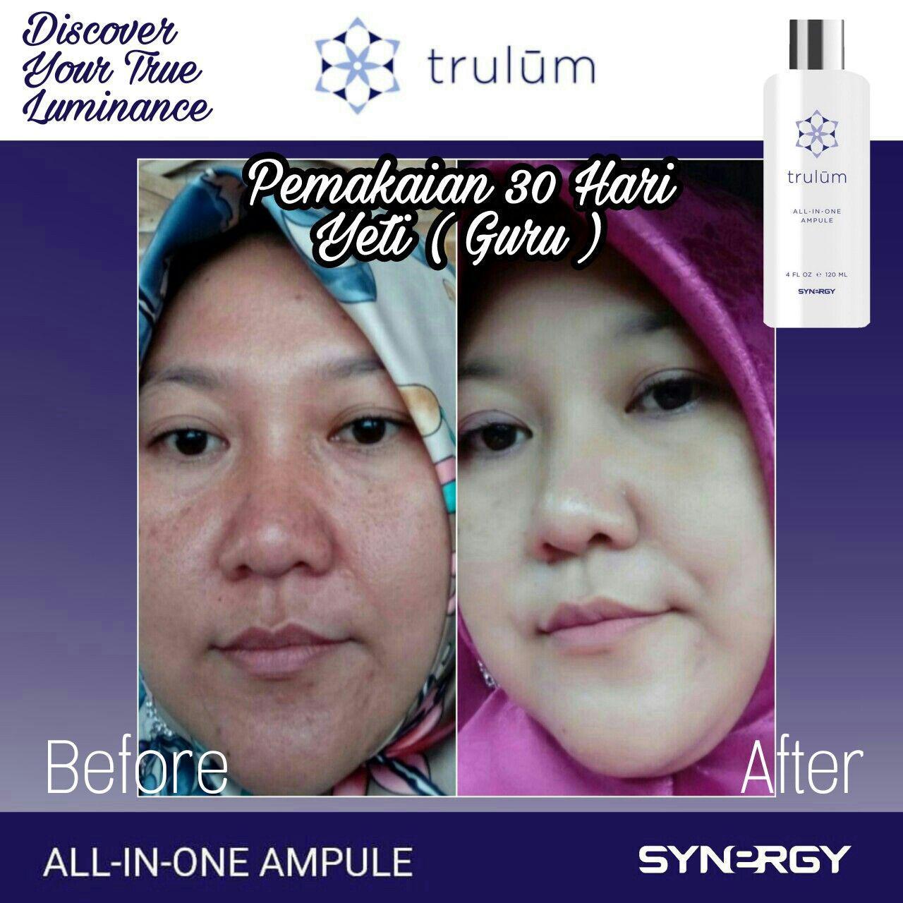 Klinik Kecantikan Trulum Di Biru, Bandung WA: 08112338376
