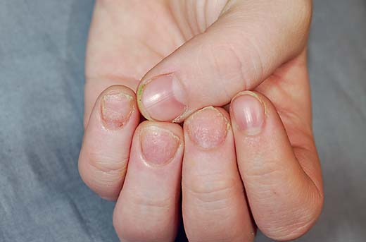 HOMOEOPATHIC REMEDIES FOR TWENTY-NAIL DYSTROPHY OR
