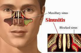 Obat Penyakit Sinusitis Herbal