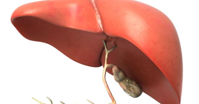 Cara Mengobati Pembesaran Hati | Cara Mengobati Hepatitis B