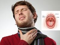 7 Cara Mengobati Sakit Tenggorokan secara Alami dan Aman Tanpa Efek Samping