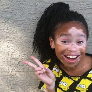 ¡Una gran sonrisa vitiligo!