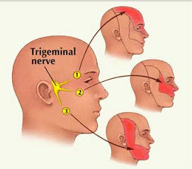 Trigeminal Neuralgia,symptoms of Trigeminal Neuralgia